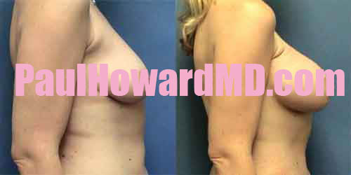 breast augmentation with armpit incisions