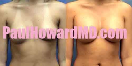 Breast Augmentation Before After Photo Gallery