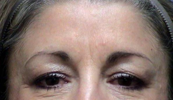 Browlift before after pics