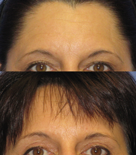 Browlift Before and After by Dr. Paul Howard
