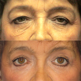 Eyelid surgery before after