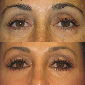 eyelid surgery before and after pictures