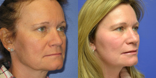 before and after photos of facelift