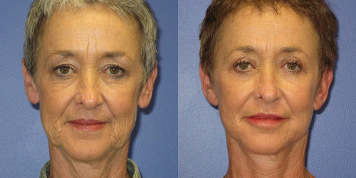 before after pics of facelift