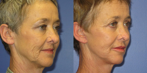 before after photos of face lift