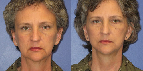 before after photos facelift