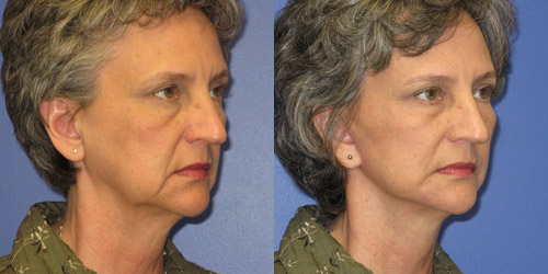 before after pics facelift