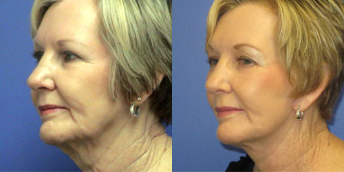 before after photos surgery facelift