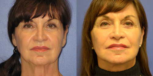 before and after facelift pics