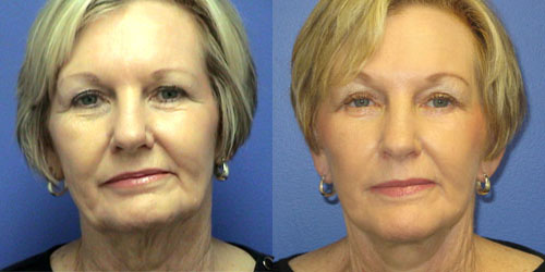 Dr. Paul Howard Facelift Before and After Pictures