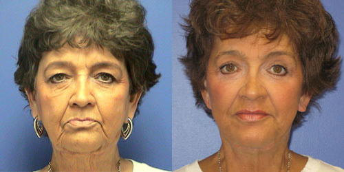 surgery facelift pictures