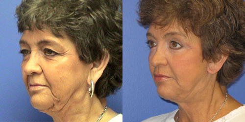 surgery face lift before and after