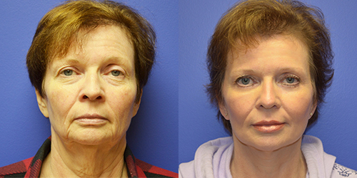 Facelift by Dr. Paul Howard
