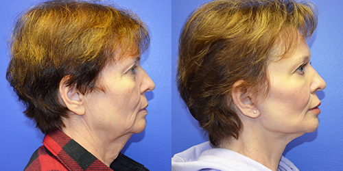 facelift surgeons before after