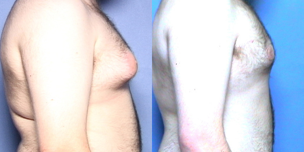 Gynecomastia Photos