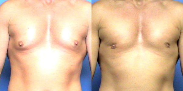 Male Breast Reduction Birmingham AL