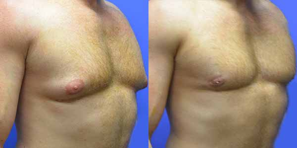 Male Breast Reduction Hoover AL