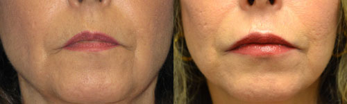 before and after lip augmentation pictures