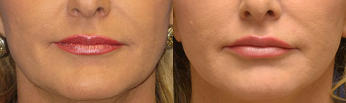 lip augmentation injections photos