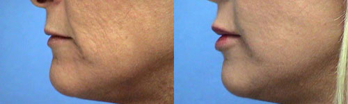 lip augmentation photos