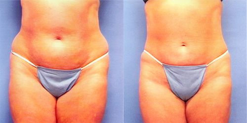 before after liposuction pics