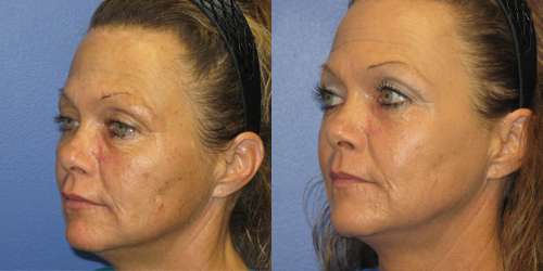 skin resurfacing before and after pictures