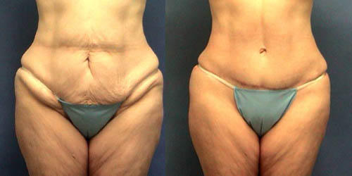 tummy tuck pictures