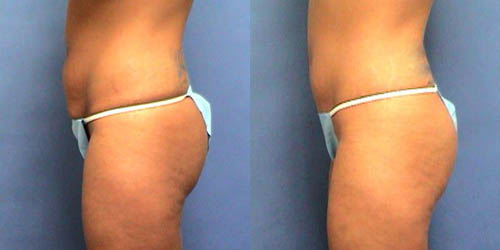 Tummy Tuck Photo Gallery