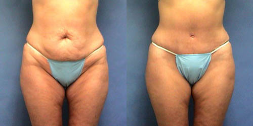 Click image to be directed to our tummy tuck photo gallery.