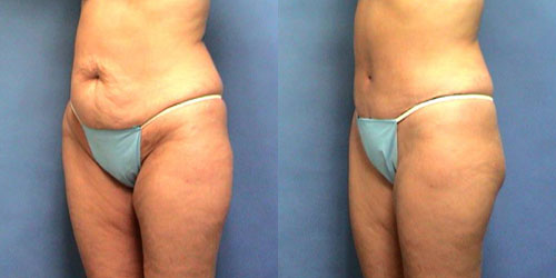 Tummy Tuck before and after photos.
