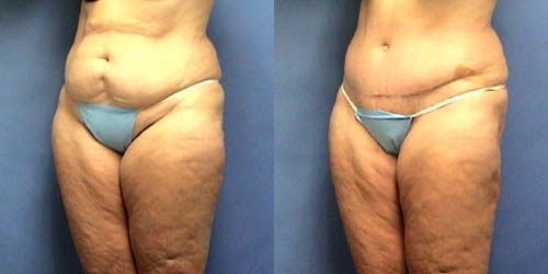 tummy tuck before after pics
